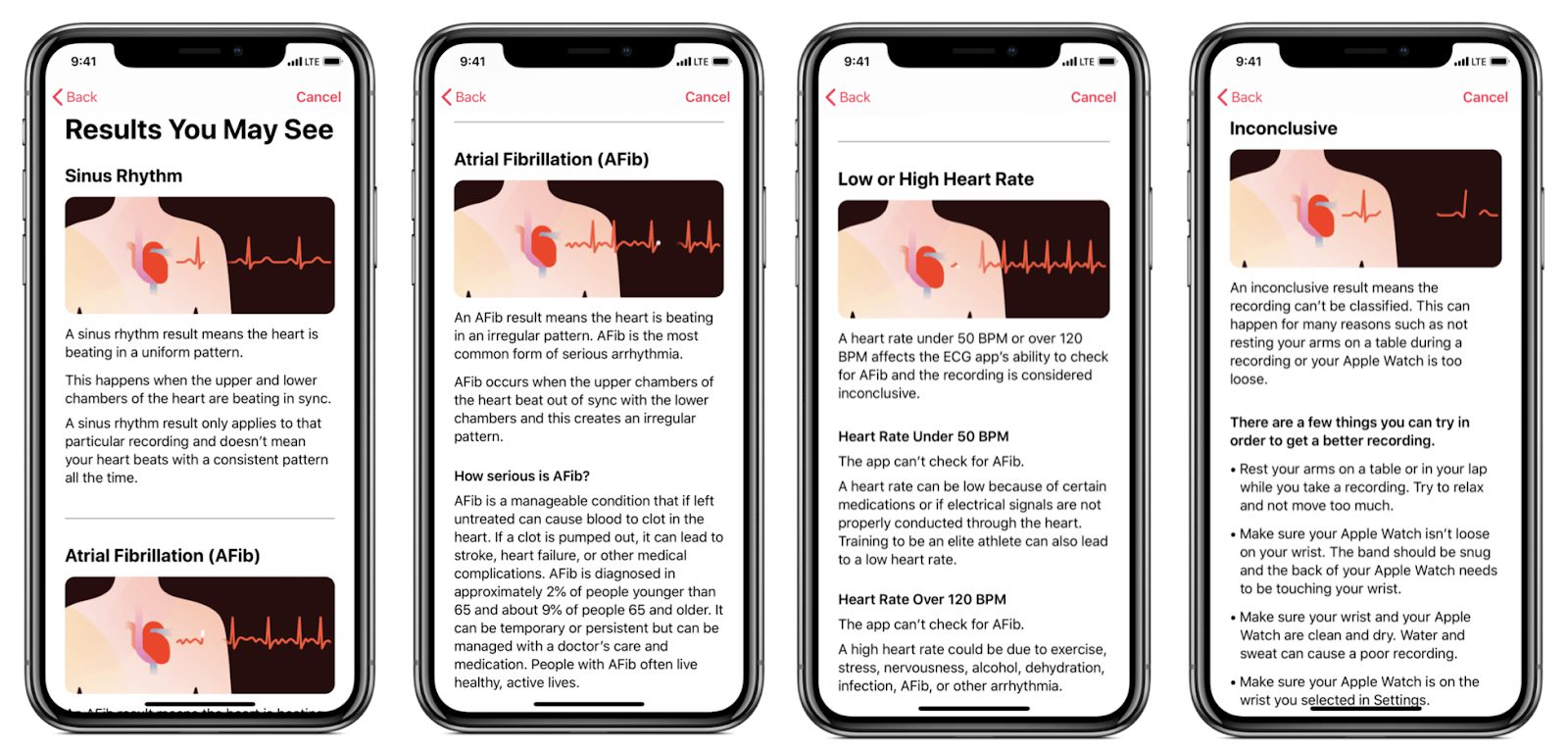 how to do ecg on apple watch